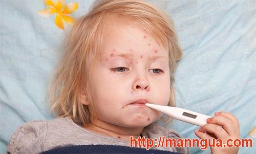 Khi trẻ nổi mẩn kèm sốt nên cho trẻ đến bác sĩ để khám -Trẻ bị mẩn đỏ ngứa toàn thân