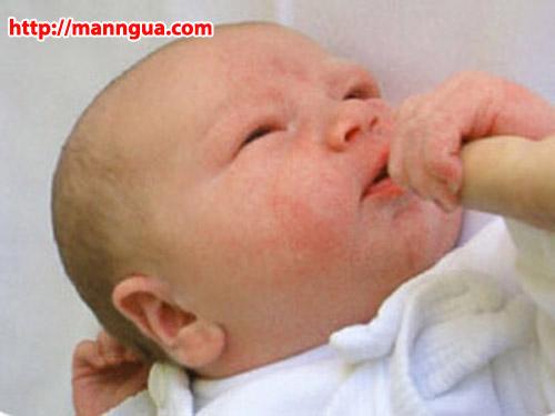 Trị mụn cho trẻ sơ sinh thế nào cho đúng cách? là thắc mắc của rất nhiều ông bố bà mẹ