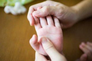 Trẻ bị ngứa nổi mụn nước mẹ phải làm sao?