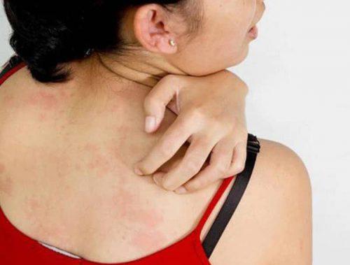 Biểu hiện của bệnh ngứa da