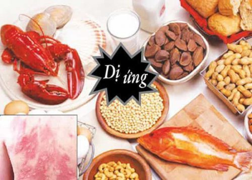 Các đồ ăn thức uống như thủy hải sản có thể gây dị ứng, mẩn ngứa