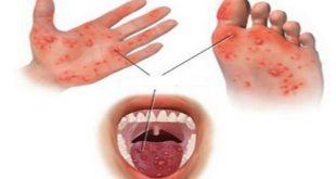 Những nốt ban phỏng nước trên da ở bé bị bệnh tay - chân - miệng.