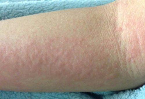 Hình ảnh da bị nổi đỏ ngứa khắp người (Ảnh minh họa)