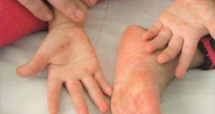 Có 3 giai đoạn phát triển bệnh mà trẻ nào bị bệnh này cũng phải trải qua